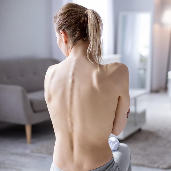 Anorexia por rede sociales
